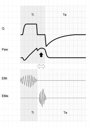 The upper zone shows tracings of Q and Paw corresponding to respiration under conventional mechanical ventilation with square flow wave and inspiratory pause. The lower zone offers a schematic representation of the electromyographic recordings of the inspiratory (EMi) and expiratory muscles (EMe). Note that Tipac is smaller than Tivent (double hollow arrow). After relaxation of the inspiratory muscles, exhalation does not take place because the airway is still pressurized. A few instants later, the patient activates the expiratory muscles, producing an end-inspiratory increase in Paw (solid arrow).