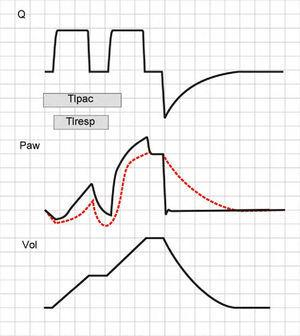 Double cycling in volume-controlled ventilation. When the Ti of the patient (Tipac) is greater than the Ti of the ventilator or respirator (Tiresp), the patient continues inspiration against the already closed inspiratory valve, causing the drop of Paw and, if the triggering threshold is exceeded, a new inspiratory cycle is started in which the second tidal ventilation (TV) adds to the first.