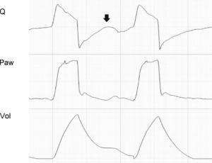 Tracing corresponding to a patient with pressure support ventilation. Note the ineffective inspiratory effort (arrow).