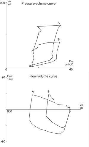 Pressure–volume (at top) and flow–volume (at bottom) tracings obtained in patient 6: (A) at baseline, and (B) during tension pneumothorax. As the patient was ventilated in pressure-controlled mode, the appearance of pneumothorax manifested as an acute drop in tidal volume, without changes in the airway pressures.