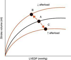 Effect of changes in afterload on the Frank-Starling curves. An increase in afterload lowers the stroke volume and increases left ventricle end-diastolic pressure (LVEDP) (displacement of points A to C). A decrease in afterload increases stroke volume and lowers LVEDP (displacement of points A to B). LVEDP, left ventricle end-diastolic pressure.