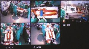 Camera views during simulated initial trauma management.
