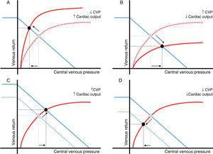 Relationship between changes in central venous pressure and cardiac output. Central venous pressure (CVP) is defined by the relationship between the right ventricular function (red) and venous return curves (blue). Intersection of both curves (black dot) determines a unique value of CVP and cardiac output. Changes in cardiac output and CVP in the same direction mainly reflect variations in the venous return (peripheral function). Changes in cardiac output and CVP in opposite directions are usually the result of a variation in cardiac function (central function). A: cardiac function improvement; B*: cardiac function worsening; C: venous return increase; D: venous return decrease. *In this particular scenario, an increase in extravascular pressure should be also considered (air trapping, intraabdominal hypertension, etc.). In these circumstances, transmural pressure and cardiac preload could be reduced.