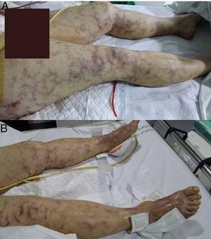 "Image of livedo reticularis on the lower extremities, first 24h of admission. Skin involvement comprising the upper abdomen, hips, buttocks and both feet, with ""blue toes"". The image at top shows drainage after emergency laparotomy with splenectomy, gastrectomy and pancreatectomy due to multivisceral infarcts."