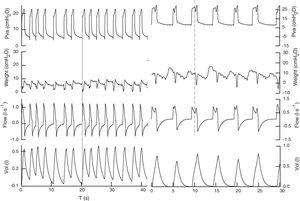 Registry of the signals (Pva, Pes, flow, vol) in pressure support from both patients. In the first patient, pressure support is set at 18 and PEEP is set at 5cmH2O, and by improving the interaction with the ventilator, the effort precedes the mechanical cycle (continuous line) with a respiratory frequency of 22bmp to achieve a tidal volume of 0.450l, with no signs of excessive respiratory effort and delta esophageal pressure (Δpes) values <5cmH2O. In the second case, pressure support is set at 25 and PEEP set at 6 keeping heart rate at 12bmp and tidal volume at 0.783l. In this second case, the patient's effort follows the beginning of the mechanical cycle and, possibly, the ventilator trigger is the change of pressure (or flow) caused by the heartbeat. The patient's effort (dotted line) reduces the phase of airway plateau pressure originating a new increase of inspiratory flow.