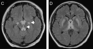 Progression of the lesions to cerebral peduncles and basal ganglia.