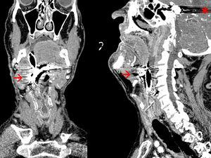 CAT scan cranial, coronal and sagittal slices with metallic artifacts.