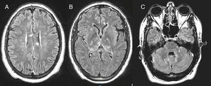 Hyperintense signal lesions (FLAIR sequencing) in the basal ganglia (B), posterior fossa (C) and with involvement of the corpus callosum (A), regarded as pathognomonic.