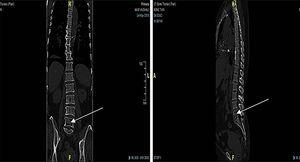 Coronal and sagittal view showing air pocket at L5–S1 vertebrae.