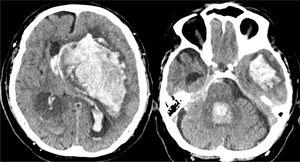 Brain CT scan revealing massive hemorrhage of the left basal ganglia, opening to the ventricles, midline displacement and important brain edema with signs of brain herniation.