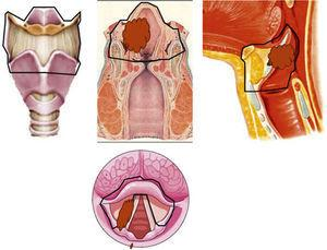 Schematic anatomy of the regions removed when carrying out a supraglottic laryngectomy.