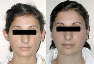 Case 1. Frontal view at 6 months after surgery.