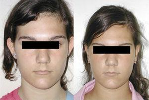 Case 2. Frontal view at 6 months after surgery.