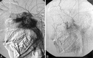 Angiography image before (A) and after (B) embolisation, showing the vascular supply from the internal maxillary artery in a sagittal view.