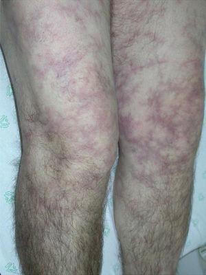 Livedo reticularis in a patient with polyarteritis nodosa.