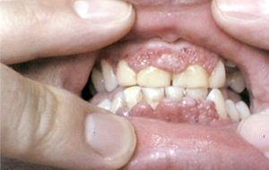 """""""Strawberry"""" gums in a patient with Wegener's granulomatosis."""