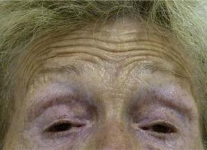 Marked palpebral ptosis. It is possible to appreciate a tendency to contract the brow muscle to raise the eyelids.