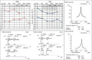 Audiogram and impedanciometry showing bilateral mixed hearing loss, type Ad tympanogram and absence of acoustic reflexes with a stimulus of 1000Hz bilaterally. Acoustic reflexes can be found with a stimulus of 2000Hz.
