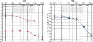 Audiogram showing right severe mixed hearing loss and left mild sensorineural hearing loss.