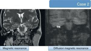 Magnetic resonance imaging (MRI) scan of a 45-year-old female patient suffering cerebrospinal fluid fistula in the ear, showing an unspecific mass in the anterior part of the tympanic cavity. Next to it is the diffusion resonance imaging scan, showing the presence of hyperintense material, characteristic of cholesteatoma.
