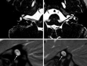 Cochlear nerve deficit, right ear (RE) (from the upper left, in clockwise direction: axial MRI: the right cochlear nerve is not identified in any cut. axial MRI, dilated IACs. Parasaggital MRI, IAC in left ear (LE): cochlear nerve component is identified in anterior–inferior, in contrast to RE, where it is not identified. The arrows indicate the position of the cochlear nerve).