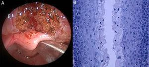 (A) Endoscopic image after removal of the cyst. (B) Histopathology. Stratified epithelium lining the cyst lumen.