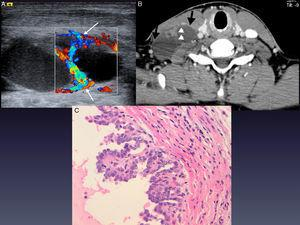 Case 2: lymph node metastasis of papillary carcinoma of the thyroid. (A) Doppler ultrasound study showing a cystic lesion with intense vascularisation in the septa (long white arrows). (B) CT scan with intravenous contrast: a polylobulated, thin-walled lesion can be seen (black arrows) with septa in the right supraclavicular region (white arrow tips). (C) Microscopic photo with H&E stain confirming lesional nature.