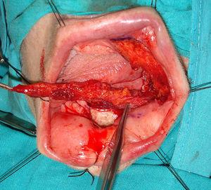 Design and dissection of a FAMM flap for reconstructing the defect in the floor of the mouth, after tumour excision.