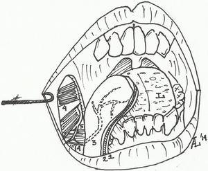 Anatomical concept of the FAMM flap. 1: mucosa and submucosa; 2: buccinator muscle; 3: facial artery branches; 4: facial musculature; 5: facial nerve branches; L: tongue. Source: A. Leidinger.