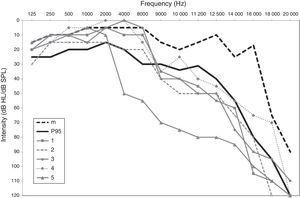 Audiometry for subjects 1–5 compared with the median (m) and the 95th percentile (P95) for the age group of 20–29 years.