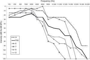Audiometry for subjects 6–9 compared with the median (m) and the 95th percentile (P95) for the age group of 30–39 years.