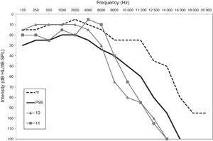 Extended High-frequency Audiometry (9000–20000Hz)  Usefulness in