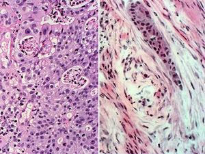 Microscopic imaging of the laryngeal tumour. (A) Adenocarcinoma of the larynx. (B) Metastasis in corpus cavernosum.