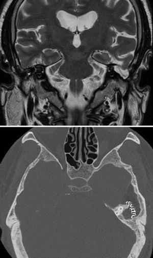MRI of the brain, coronal section in T2 showing a meningoencephalocele. Postsurgical brain CT scan in axial section where resolution of the pathology may be appreciated and part of the titanium mesh.