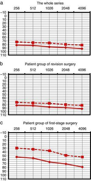 Preoperative tone audiometry of patients in the series. (a), (b), and (c) patients from the complete series were observed separately (a), patients of the revision surgery group (b) and patients from the first stage surgery group (c).