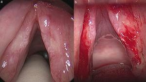 Intraoperative image of laryngeal lesions before (a) and after (b) biopsies. With the microscope magnification the ulcers in the mid-membranous portion of the vocal folds and irregularity of the mucosa are clearly seen (a). After biopsy of the ulcers in both sides (b). No other surgical manouver was made.