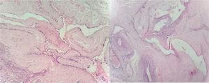 Haematoxylin and eosin stain of the specimen showing many vessels of dilated venous calibre with walls showing focal myxoid change and eccentric wall thickness (10×).