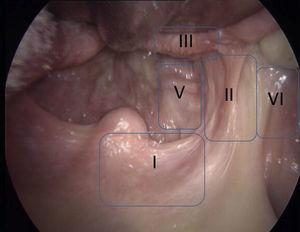 Photo of the oropharynx positioned for surgery with the proposed areas at an optical view of 0° with Davis Boyle mouth gag. Cranial to caudal layout may be observed of areas I, II and III, V and VI.