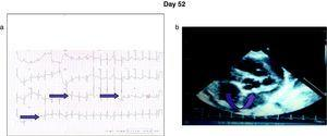 (a) Electrocardiogram showing sinus rhythm, HR 125, a P +30°, QRS axis +60°, PR 0.12, cQt 0.40, Q waves on DII, aVF, and V6. (b) Echocardiogram showing aneurism of the right coronary of 0.1cm2; left anterior descending coronary of 6.8mm; origin of both coronaries of 3mm; EF 61%.