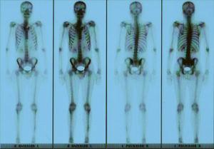 Bone scan with increased uptake of 99Tc may be observed.