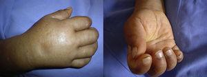 Pitting edema of the hands, synovitis and failure to grip.