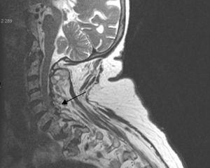 Cervical MR: degenerative changes with ospteophites in the last discs with moderate repercussion on the dural sac with no images of calcification on MR.