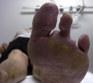 Amputation of several toes of the left foot.