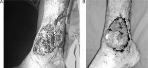 (A) Pyoderma gangrenosum of the right ankle. (B) Improvement of the lesion after treatment with infliximab.