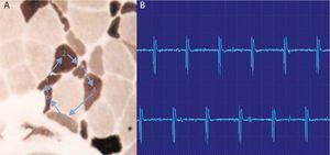 "High-frequency repetitive discharges. (A) The potential arises spontaneously in muscle fiber number 1 and epfatic transmission, by contiguity, passes to 2, and then to 3–6 and again at 1. (B) The electromyogram polyphasic potential starts and ends abruptly, which is always the same, and fires rhythmically, and is typically a sound like a machine, ""Chaca-Chaca-Chaca""."