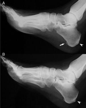 Feet X rays showing (A) a heel spur on the right foot (arrow) and bilateral Achilles entesophytes (arrowheads).