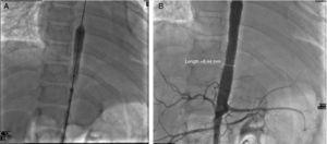 (A) and (B) Angioplasty. Placement of 2 long stents, covering the area of severe stenosis. Postoperative gradient: none. Gradient of the renal stenosis: 10mmHg. There was no procedure on the left subclavian or the renal arteries.