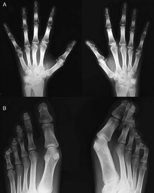 Hand X-ray (A) in which there is a periosteal reaction on the radius. There is distal widening with hypertrophic changes and areas of osteolysis, with a good example on the right fourth finger. Juxtaarticular demineralization. Feet X-ray (B) observing marked destruction of the distal phalanges, some with flattened morphology and distal hypertrophy with bone proliferation. There is marked deformity of the fingers.