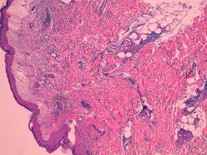Sweet's syndrome: moderate edema of the papillary dermis and a dense neutrophil infiltrate of the reticular dermis.