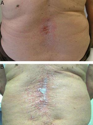 Patient with psoriatic arthritis who developed exacerbation of the psoriatic lesions 11 months after starting etanercept. (A) Improvement of the lesions 6 weeks after discontinuation of etanercept. (B) Recurrence of the lesions 6 weeks after restarting etanercept.